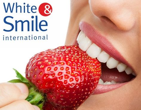 White&Smile franchise
